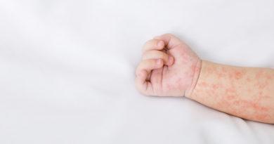 Dermatite atopica da moderata a grave